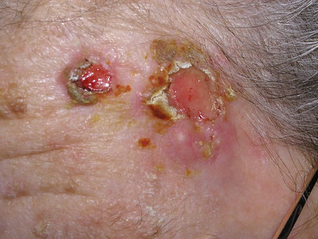 carcinoma escamoso. Consultori Azon-Torres