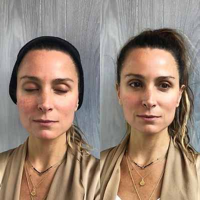 Cryoskin+Facial+Before+After+1.jpg