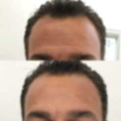 CST+Cryoskin+Facial+Before+After2.jpg