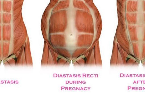Diastasis Recti In Pregnancy & Postpartum