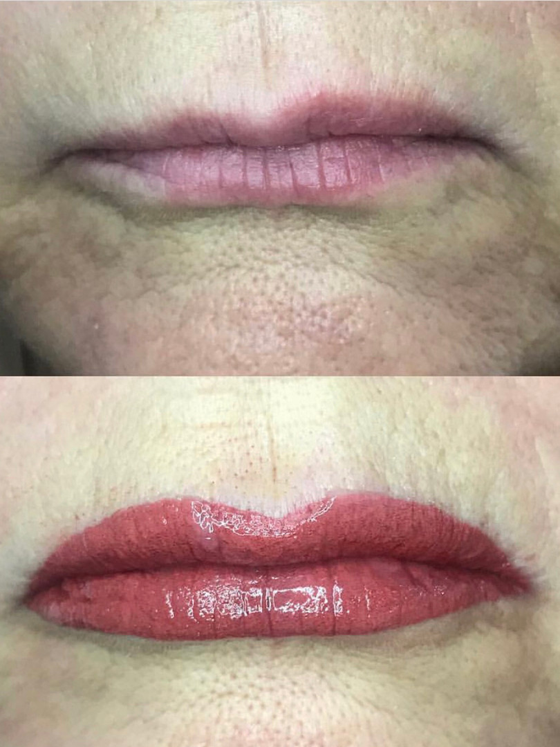 Lip correction- before & after first session
