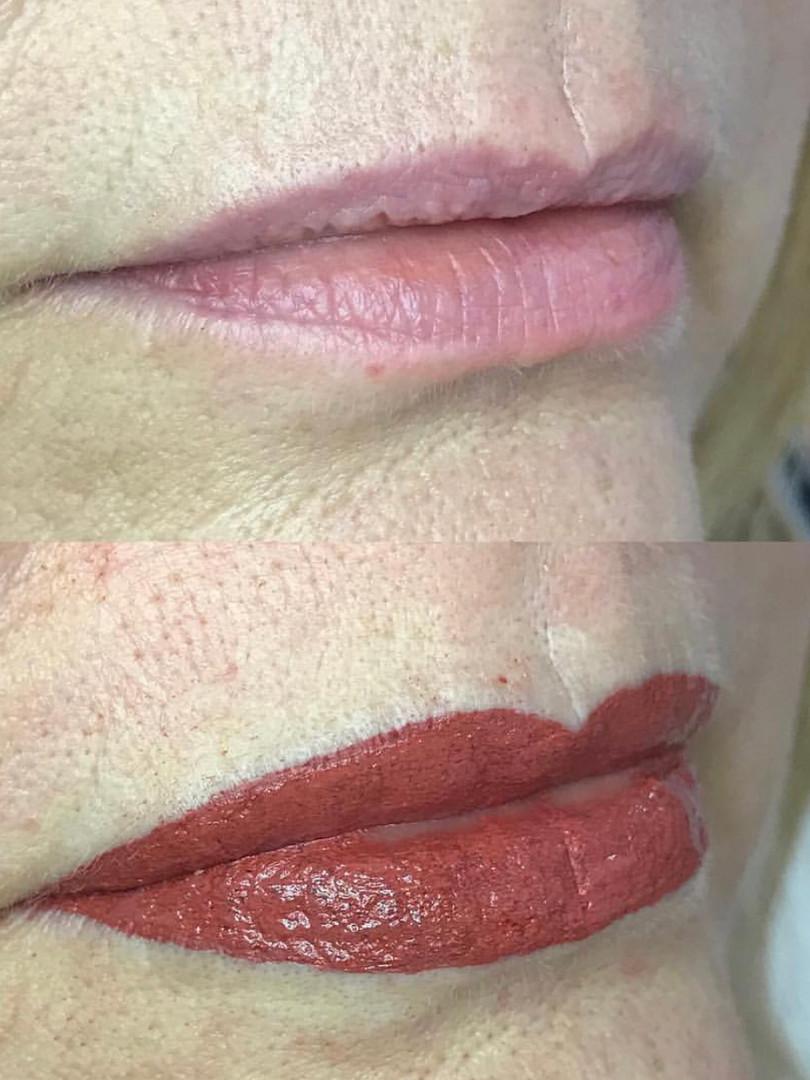 Lip reprofile