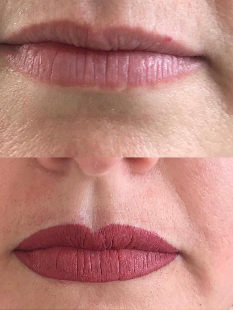 Before & after lip reprofiling