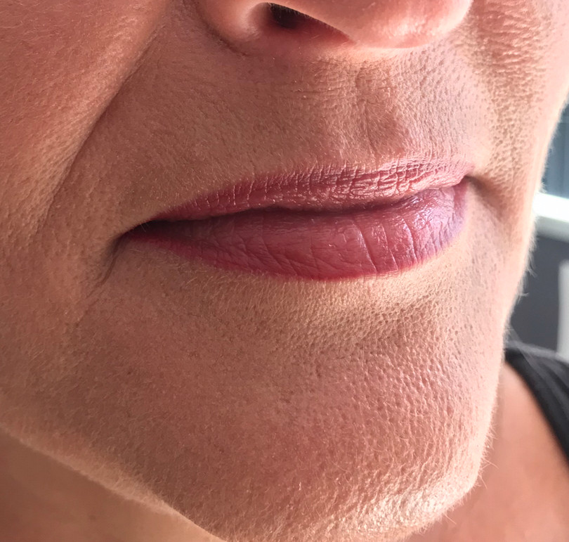 Healed Ombre lips