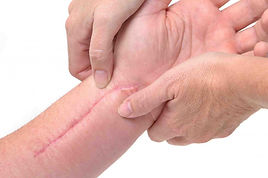 MSTR Scar Tissue Release Therapy Treatment - Donna Robbins Therapies in Margate, Thanet, Kent