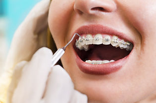 Closeup young woman checking her braces,