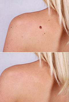 Medical spa in Missouri City - Skin Tag Removal - www.luminancehbc.com