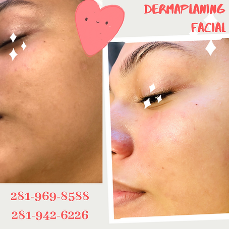 Dermaplaning Facial Luminancehbc Sugar Land TX