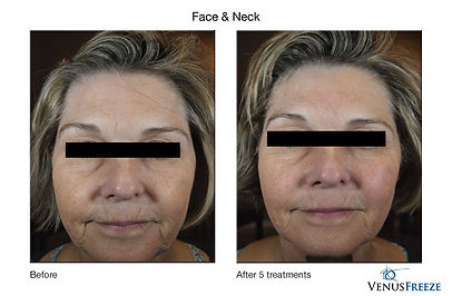 Skin tightening treatment help building collagen at www.luminancehbc.com Medical Spa near Houston TX