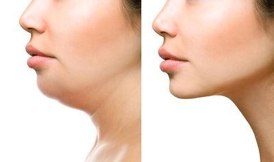 Chin Liposuction - Smart Lipo