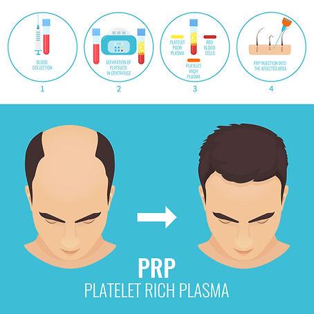 PRP Hair Restoration - Sugar Land TX