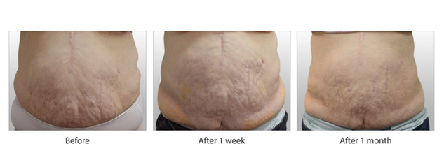 SmartLipo Actual Client B - Courtesy of Chinh Pham MD