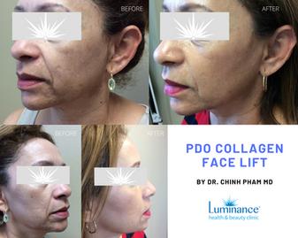 PDO Collagen Thread lift