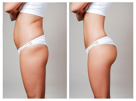 High Definition Body Sculting