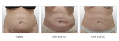 SmartLipo - Actual Client A - Courtesy of Chinh Pham MD