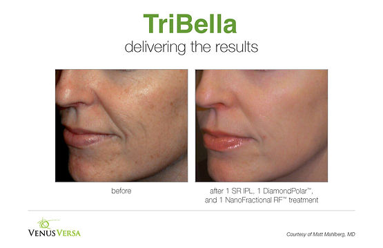 TriBella Skin rejuvenation Houston TX | luminanehbc