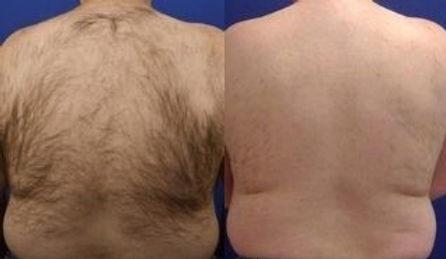 ba hair removal.jpg