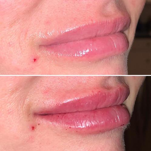 lip4.jpg
