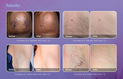 hair-removal-email-results-600x385.jpg