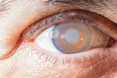 Eye with cataract and corneal opacificat