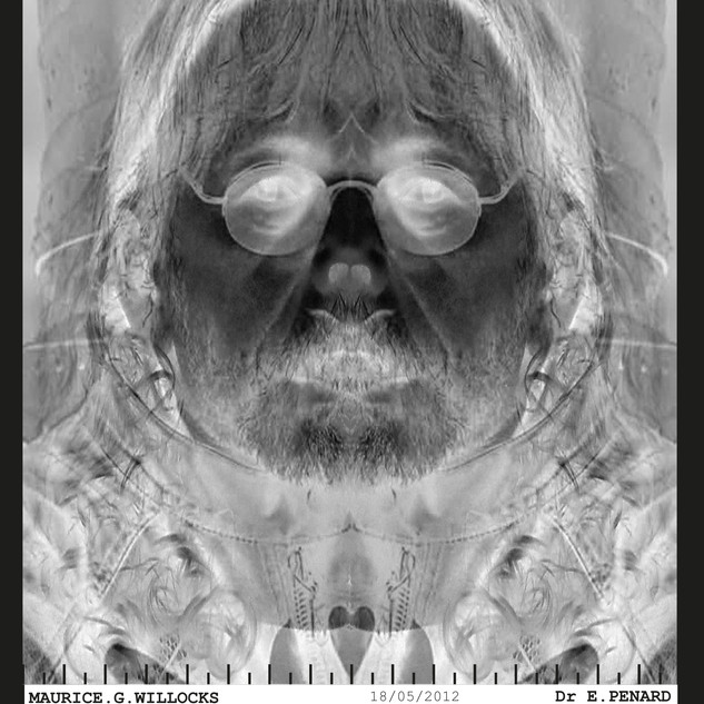 AGENT DOUBLE RADIOGRAPHIE