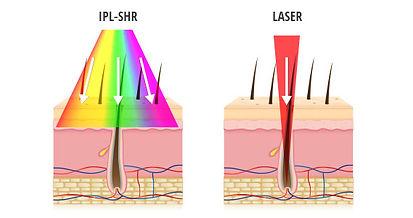 laser_ipl_1.jpg