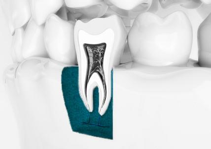 Zahn Endodontie.png