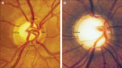 glaucoma 2.jpg