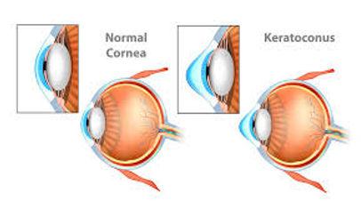 keratoconus image 2.jpg