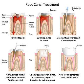 Dental root canal process