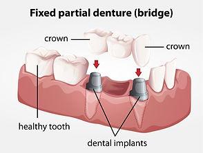Dental implant with bridge