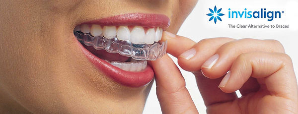 Invisalign clear aligners straight beautiful teeth