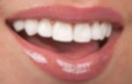 Beautiful smile, dental veneer