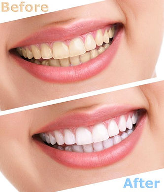 Before an after tooth whitening