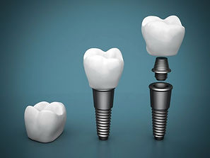 Schematic diagram with dental implant and dental implant crown