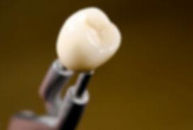 Dental porcelain crown
