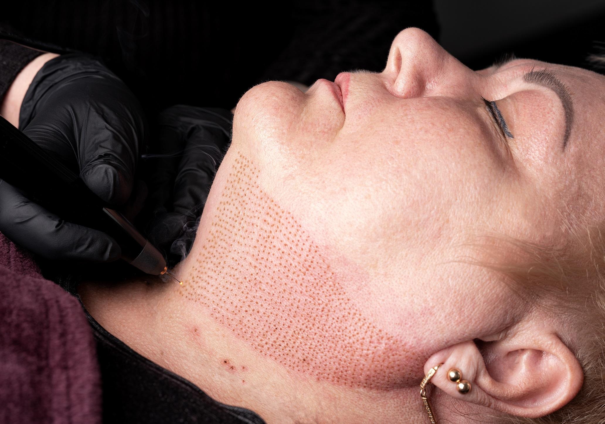 Fibroblast for full neck