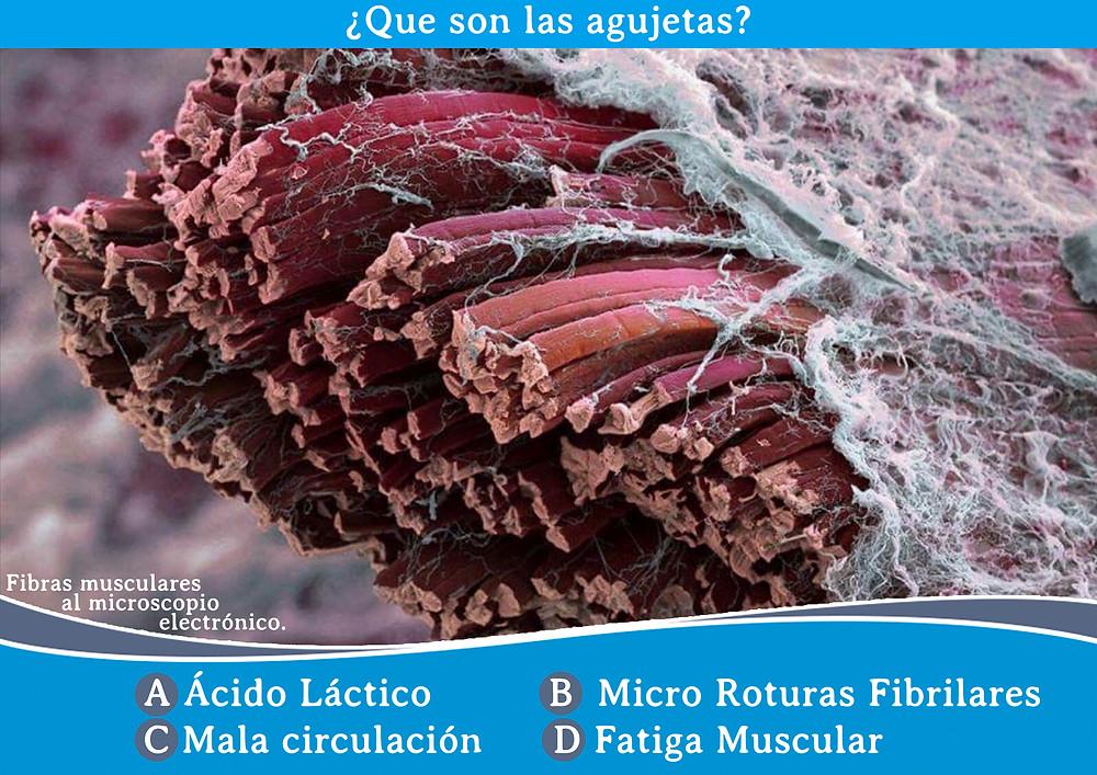 Agujetas (Fibras musculares al microscopio electrónico)