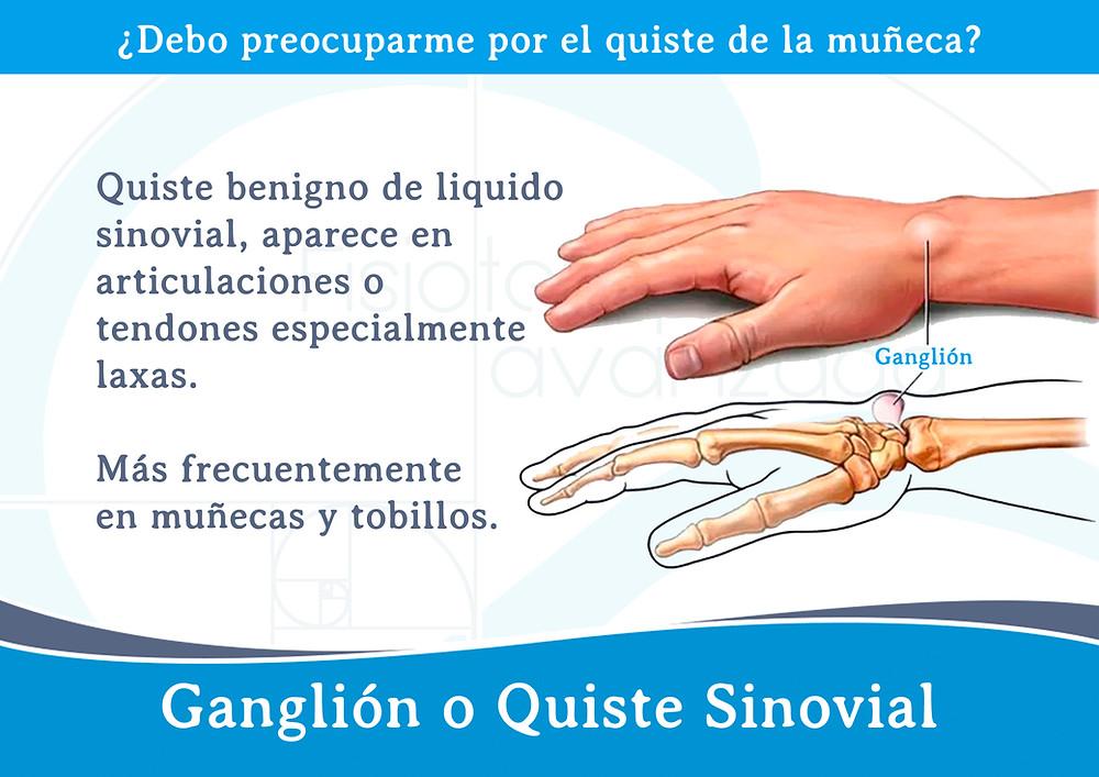 Ganglión o Quiste Sinovial