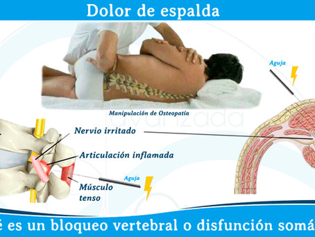 Dolor de espalda (bloqueo vertebral)
