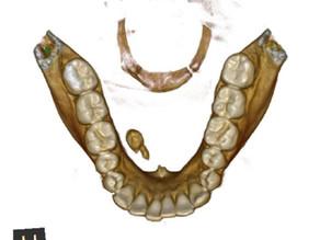 Sialolithiasis (Salivary gland stone)