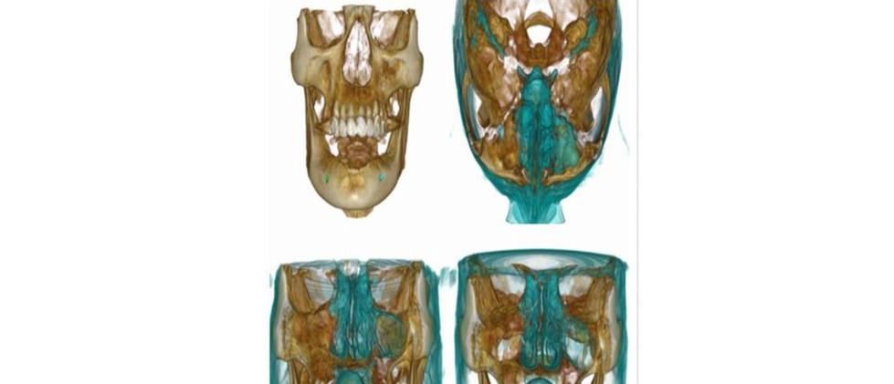 Sinus related pathology