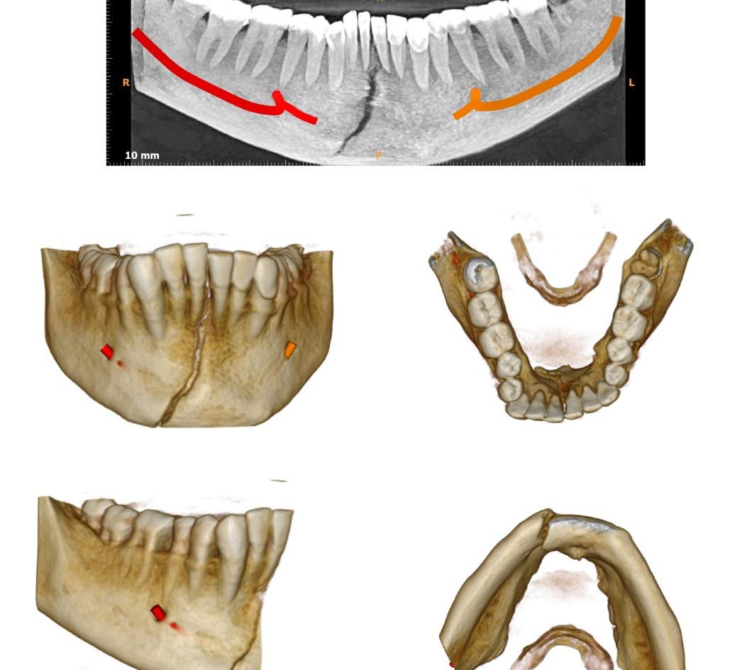 Dentoalveolar fractures