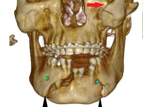 Maxillofacial trauma imaging using CBCT