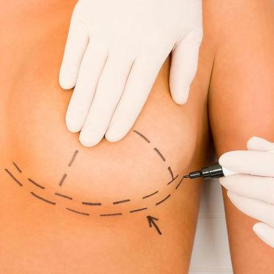 mamoplastia-redutora-sinop.jpg
