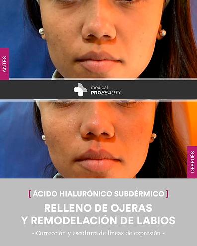Testimonios-RELLENOS_04.png