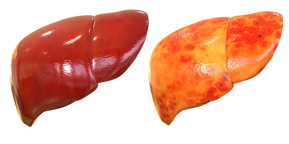 healthy liver vs. unhealthy liver. Which do you have?