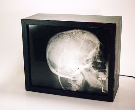 Synchronizer - Skull X-ray with medical instruments