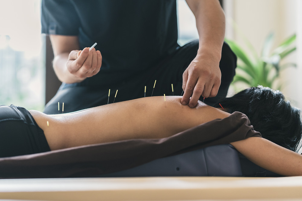 """What is a """"dry needle""""? A """"dry needle"""" is simply a needle that does not contain any medication, and so does not inject medicine into the skin. Both acupuncture and dry needling utilize a very thin, solid filiform needle as shown in the picture."""