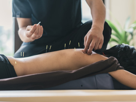 Dry needling vs. Acupuncture? What is the difference and which is right for you?